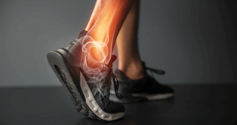 collagen supplements for joints